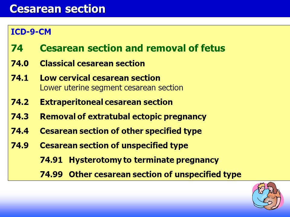 Cesarean section 74 Cesarean section and removal of fetus ICD-9-CM