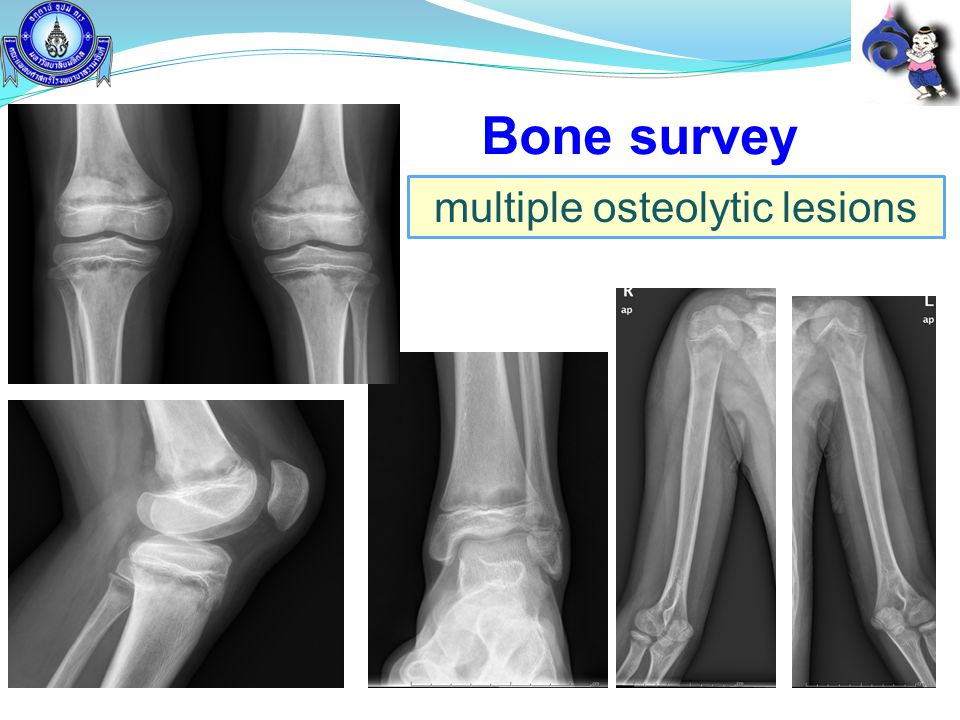 multiple osteolytic lesions