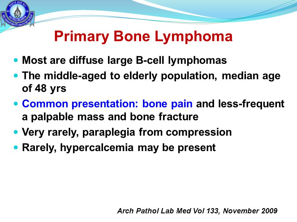 Primary Bone Lymphoma Most are diffuse large B-cell lymphomas