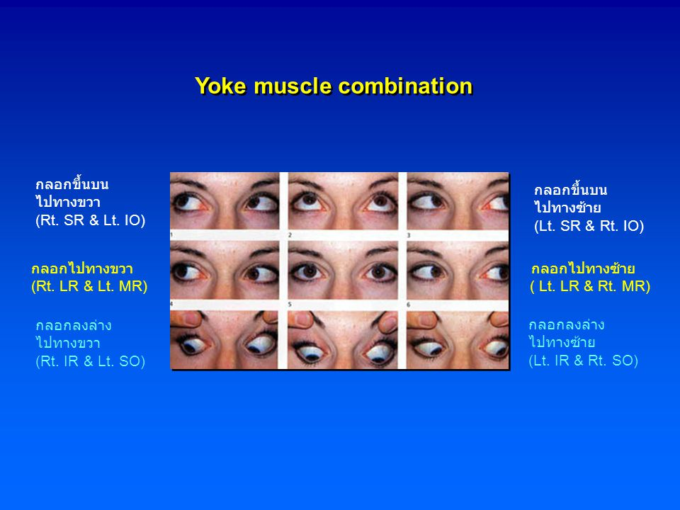 Yoke muscle combination