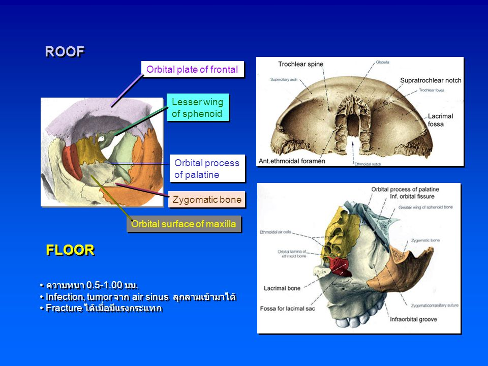 ROOF FLOOR Orbital plate of frontal Lesser wing of sphenoid