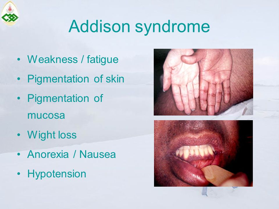 Addison syndrome Weakness / fatigue Pigmentation of skin