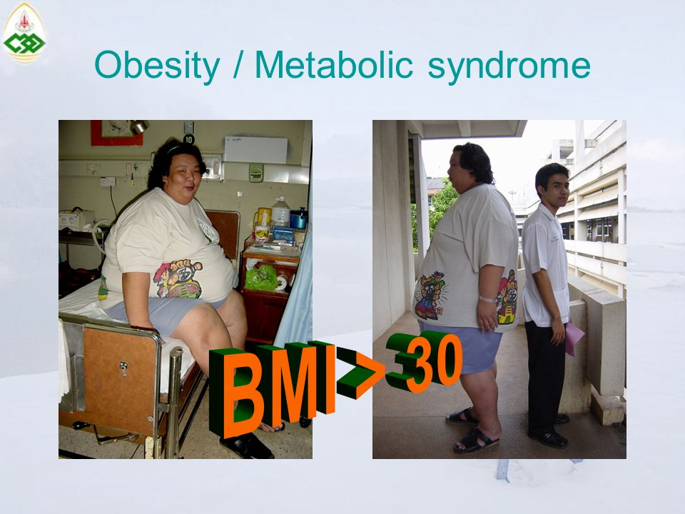 Obesity / Metabolic syndrome