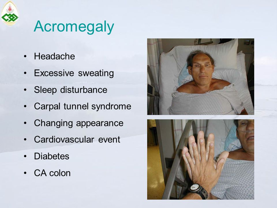 Acromegaly Headache Excessive sweating Sleep disturbance