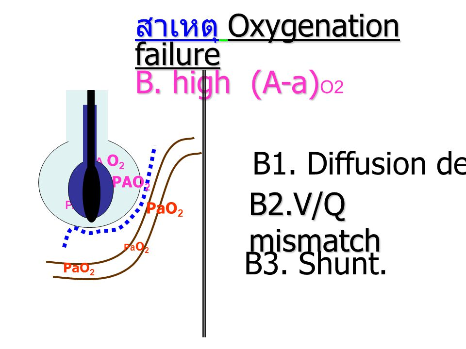 สาเหตุ Oxygenation failure B. high (A-a)O2