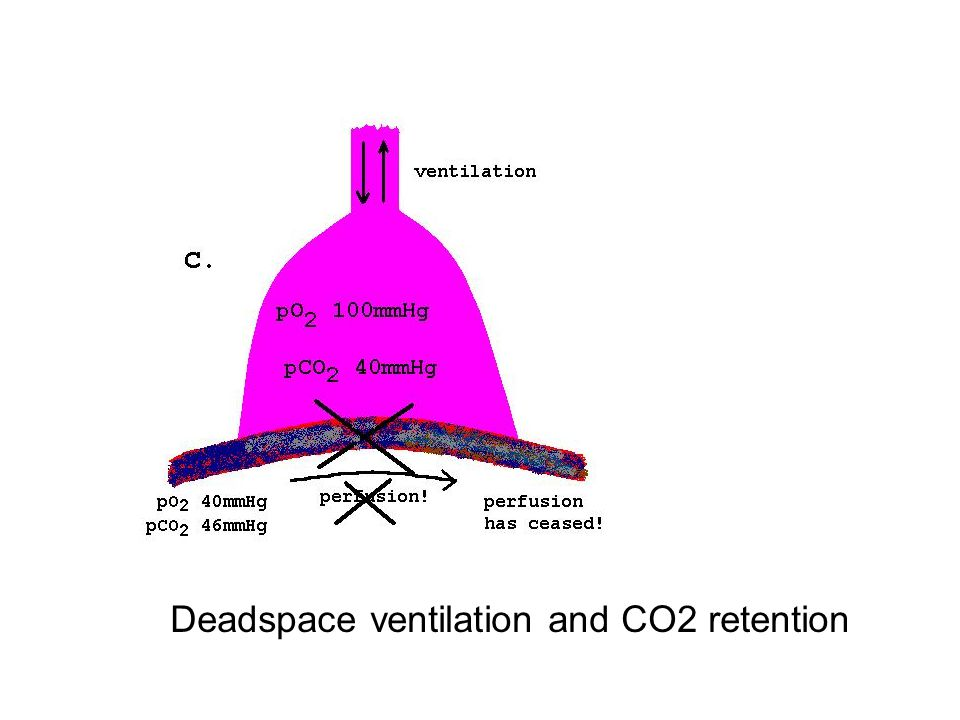 Deadspace ventilation and CO2 retention
