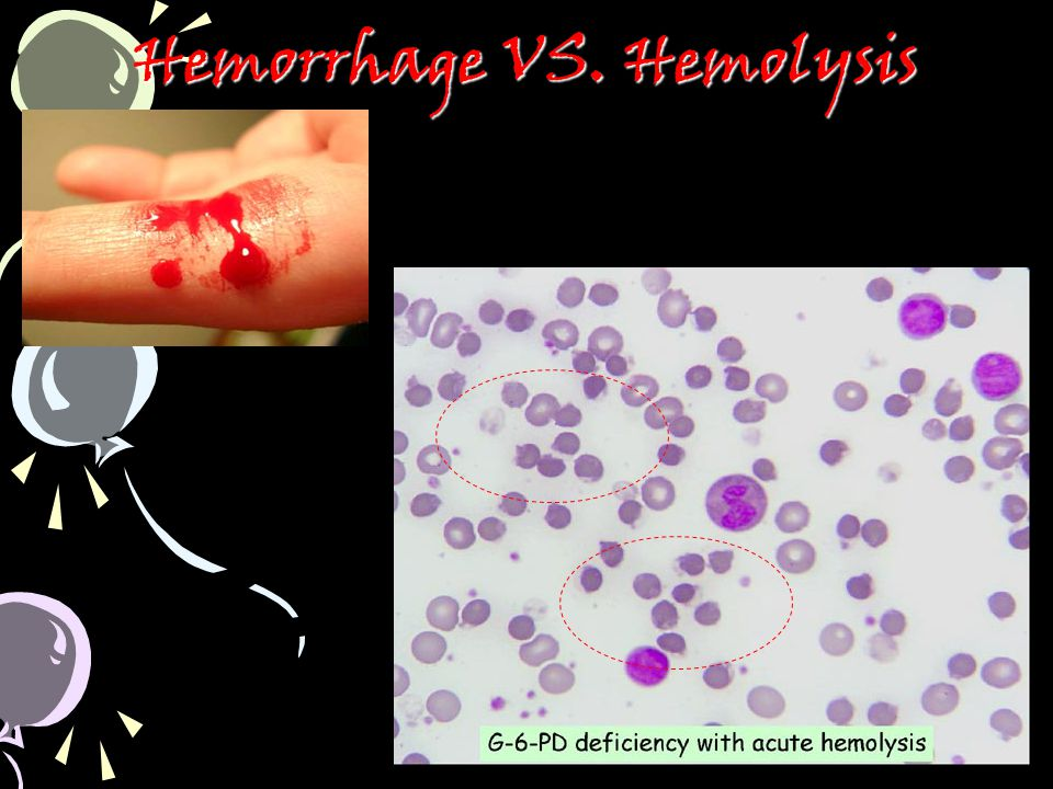 Hemorrhage VS. Hemolysis