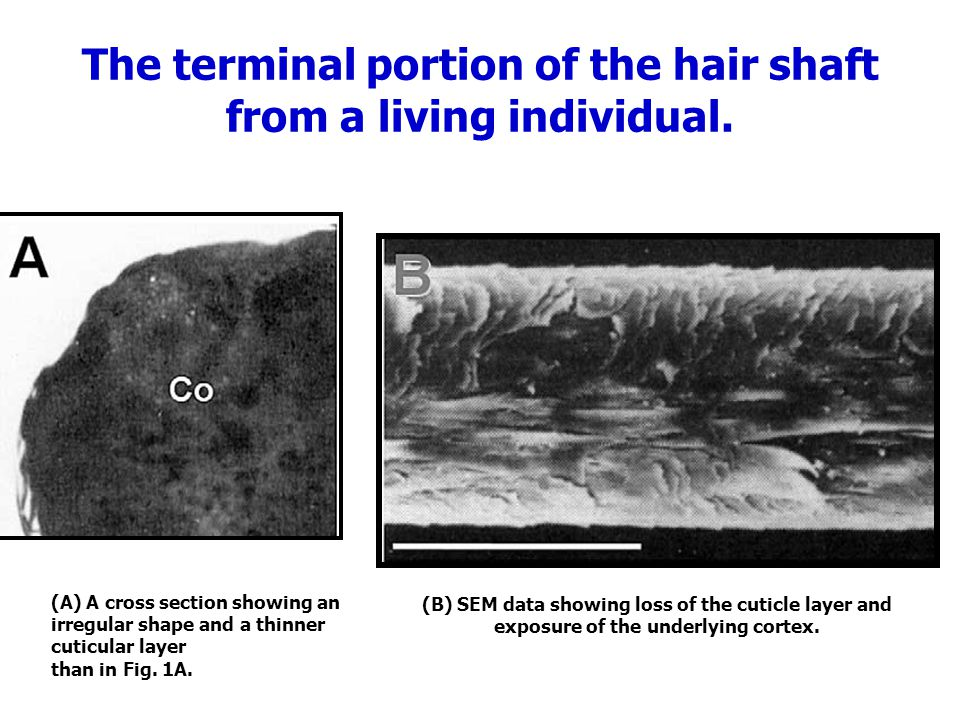 The terminal portion of the hair shaft from a living individual.