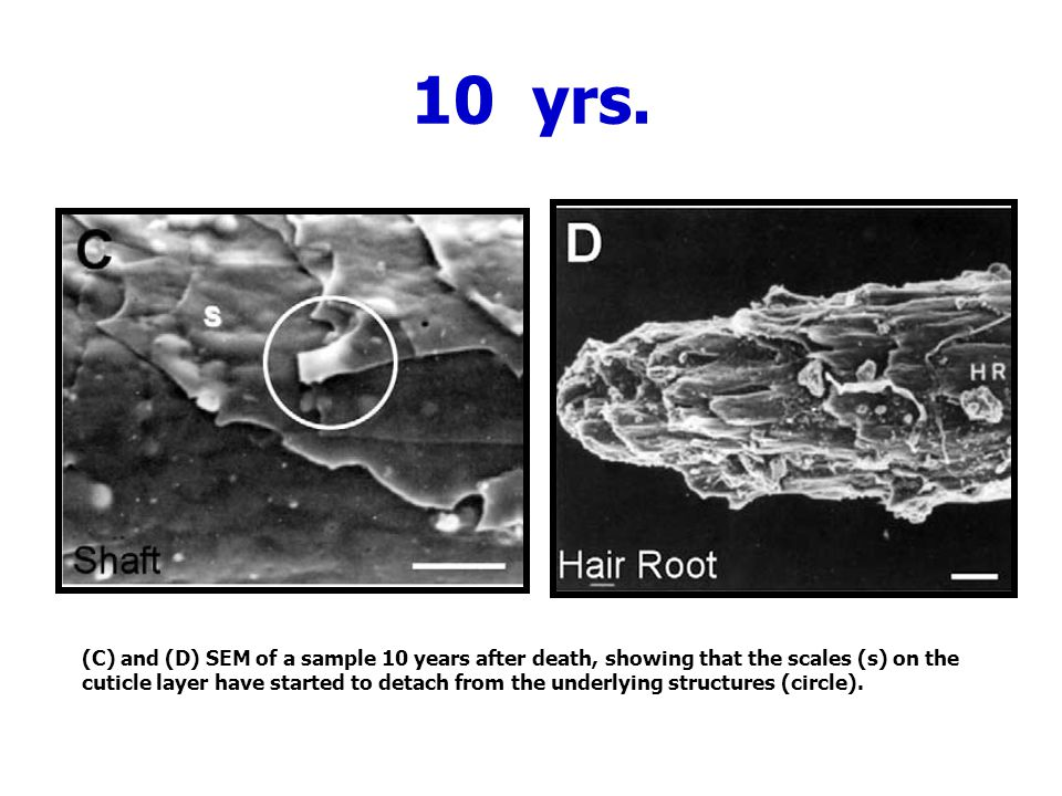 10 yrs. (C) and (D) SEM of a sample 10 years after death, showing that the scales (s) on the.
