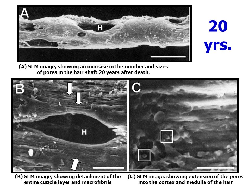 20 yrs. (A) SEM image, showing an increase in the number and sizes