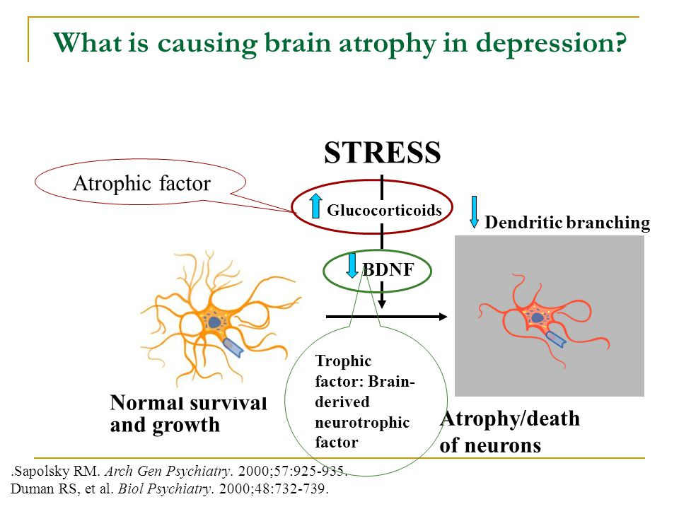 What is causing brain atrophy in depression
