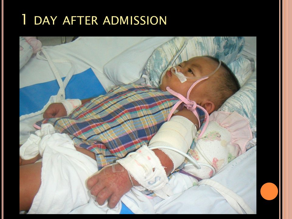 1 day after admission
