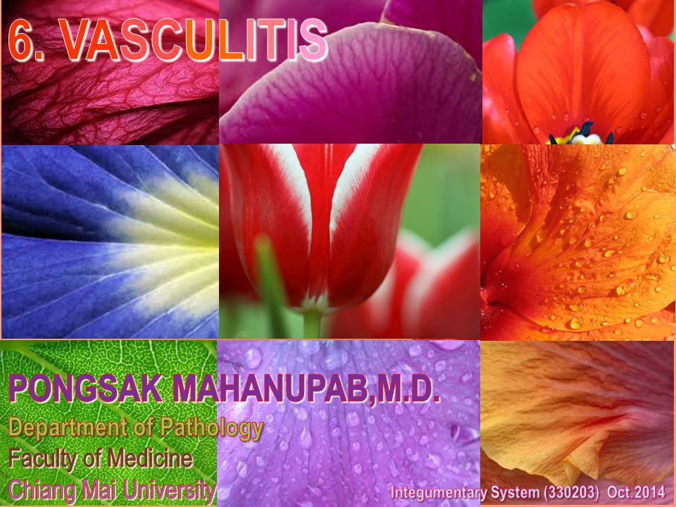 6. VASCULITIS PONGSAK MAHANUPAB,M.D. Department of Pathology